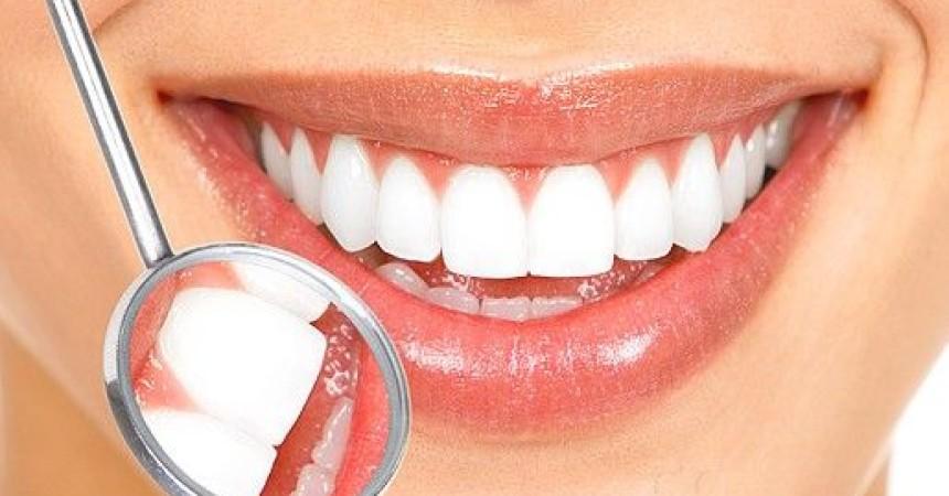 Blanqueamiento dental. 3 soluciones a un mismo problema