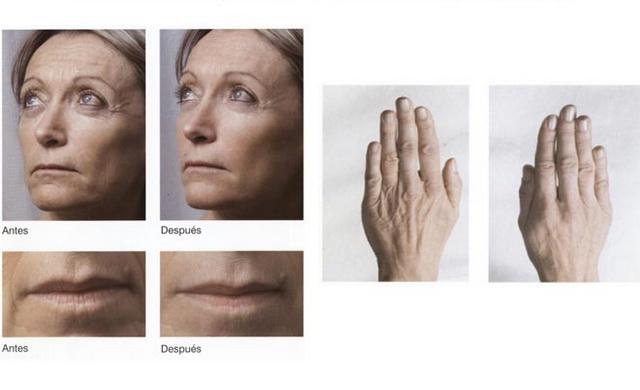 mesoterapiafacial1