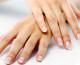 Manchas en las manos. 4 productos caseros para evitarlas