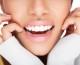 ¿Sabías que podés blanquear tus dientes sin ir al odontólogo?